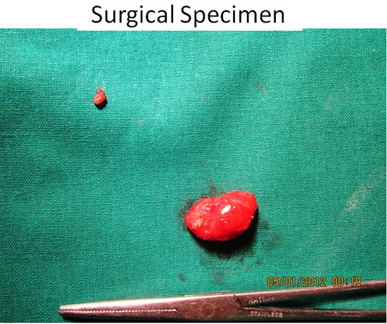 Parathyroid Surgeries