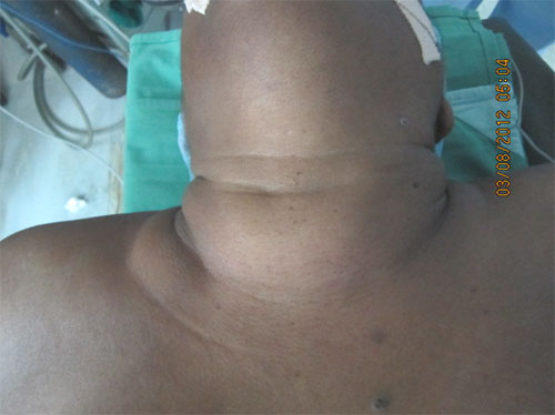 Thyroid Surgeries